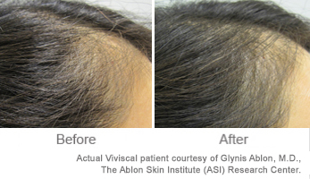 Viviscal Before and After photos